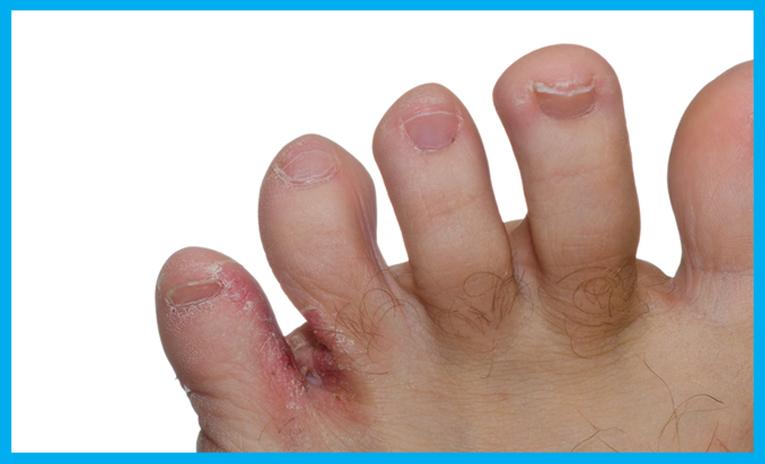 corne orteil pied